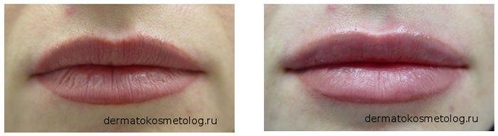 Фото пациентов до и после процедуры контурной пластики (врач Соловых Н.А.)