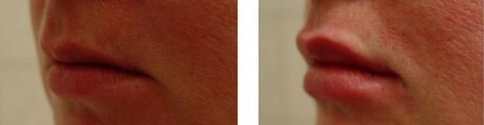 Увеличение губ (Врач Соловых Н.А.)