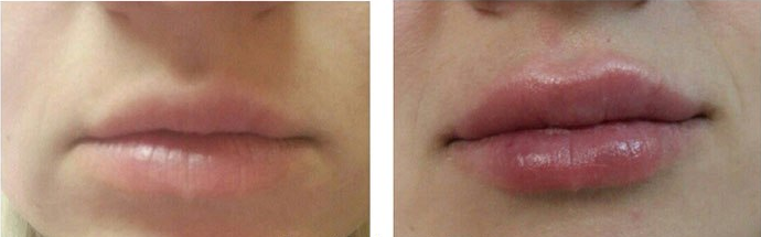 Увеличение губ (Врач Щербакова В.В.)