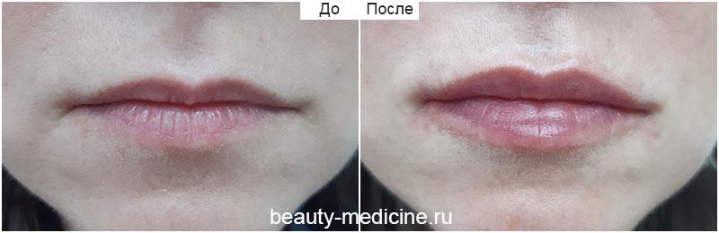 Контурная пластика губ гиалуроновой кислотой (врач Ратникова С.В.)