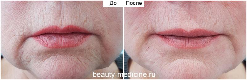 Морщины марионетки — коррекция филлерами (врач Ратникова С.В.)