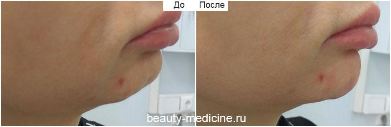 Контурная пластика филлерами - коррекция подбородка (врач Ратникова С.В.)