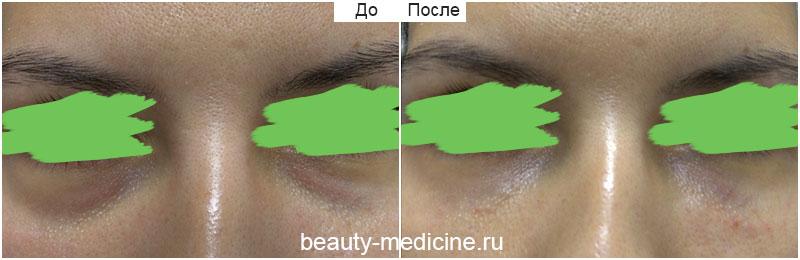 Контурная пластика филлерами - коррекция тёмных кругов под глазами, слезные борозды (врач Ратникова С.В.)