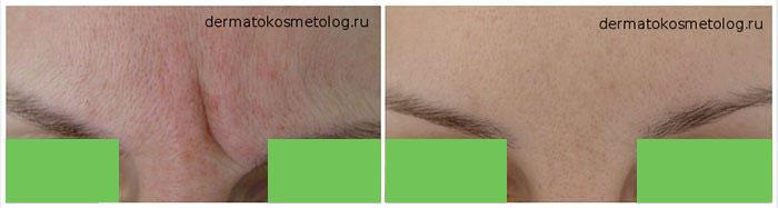 Инъекции ботокс для лица фото до и после