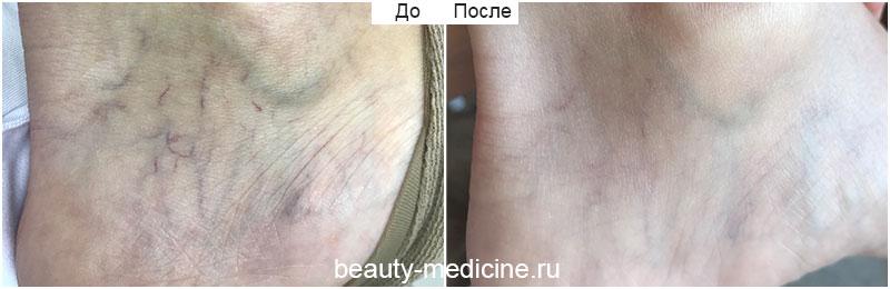 Удаление сосудов лазером на лодыжке (врач Алмазова А.А.)