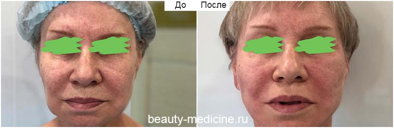 Нити Аптос фото До и После