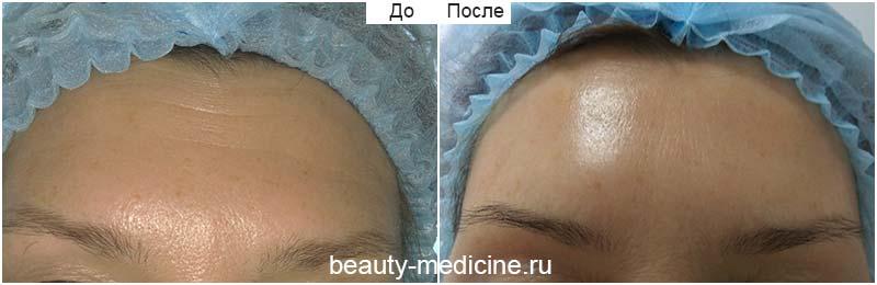 Разглаживание морщин лба ботоксом фото до и после