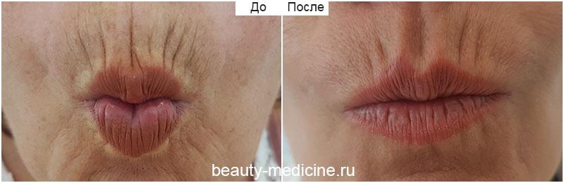 Инъекции ботокс для губ фото до и после