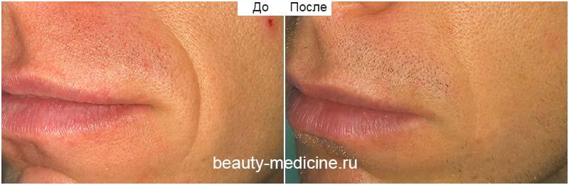 Разглаживание носогубных складок филлерами, врач Ратникова С.В.