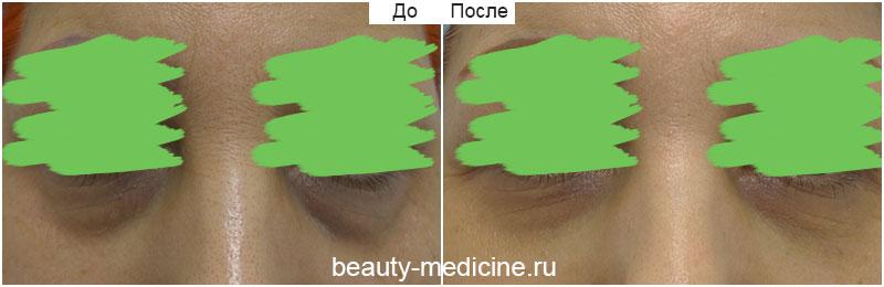 Филлеры коррекция слезных борозд фото До и После