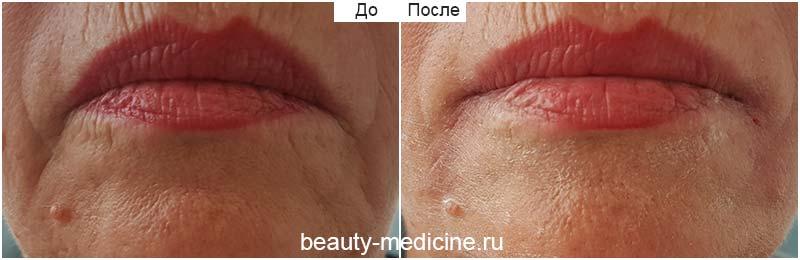 До и после - Морщины марионетки - коррекция филлерами (врач Соловых Н.А.)
