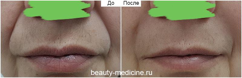 Филлеры коррекция носогубных складок фото До и После