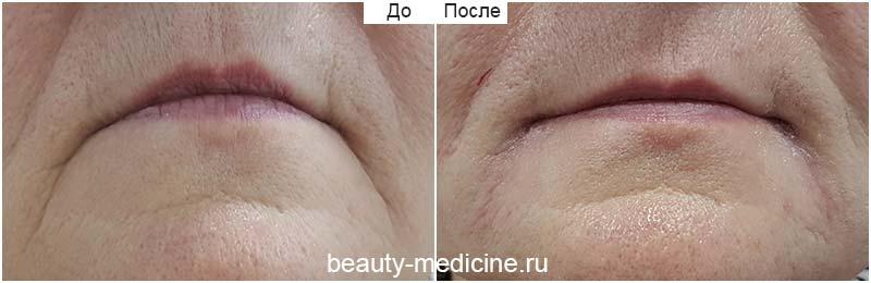 Морщины марионетки фото До и После - коррекция филлерами (врач Соловых Н.А.)