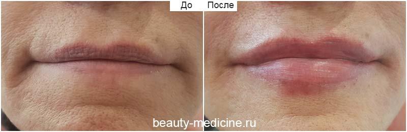 Контурная пластика губ гиалуроновой кислотой фото До и После