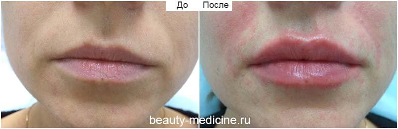 Увеличение губ гиалуроновой кислотой: фото до и после