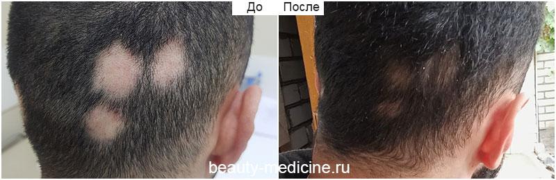 Комплексное лечение гнездной алопеции (врач Гусейнаджиева М.З.)