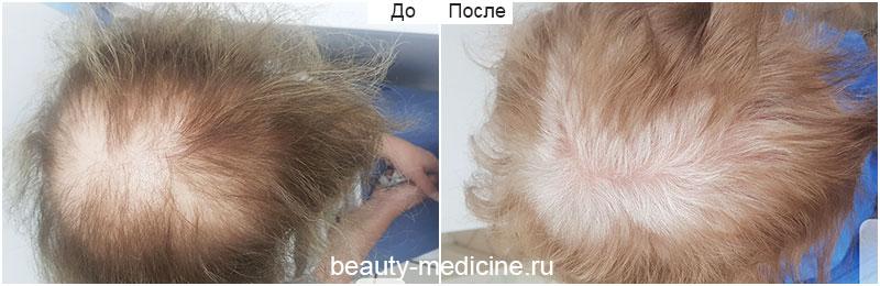 Комплексное лечение гнездной алопеции, диффузная форма (врач Гусейнаджиева М.З.)