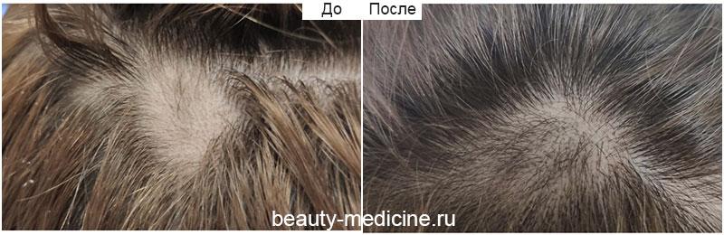 Гнездная алопеция, очаговая форма, комплексное лечение (врач Гусейнаджиева М.З.)