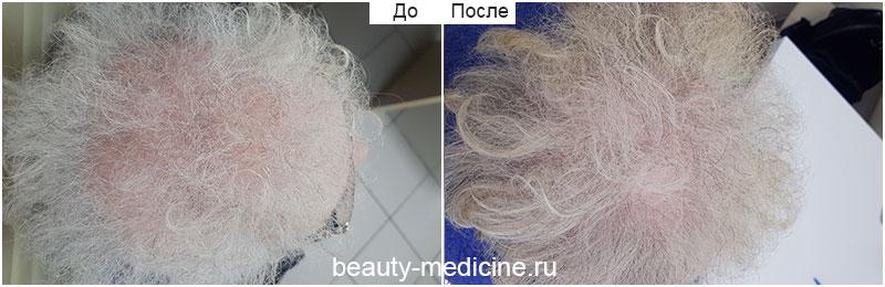 Андрогенетическая алопеция, комплексное лечение (врач Гусейнаджиева М.З.)