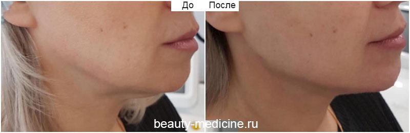 Коррекция овала лица Радиесс, фото до и после, врач Соловых Н.А.