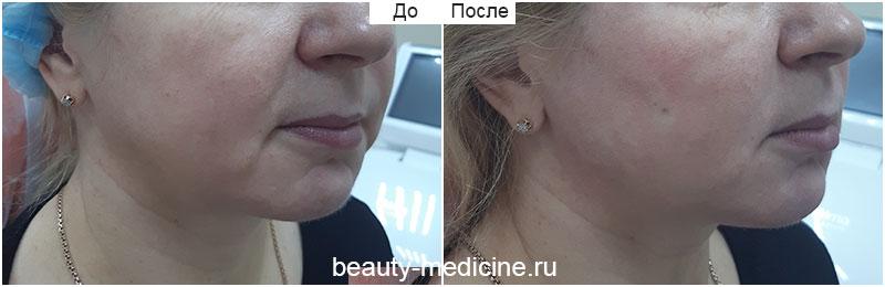 Векторный лифтинг Радиесс (врач Ратникова С.В.)