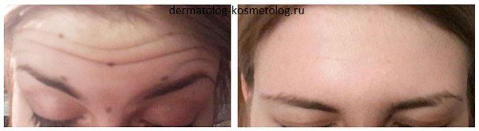 Инъекции ботокс для лица фото до и после (врач Щербакова В.В.)