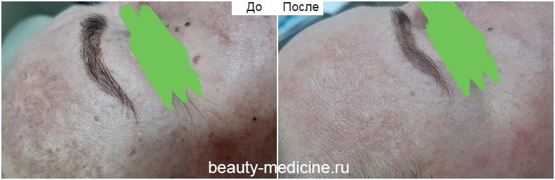 Фотоомоложение - пигментация на лбу, на аппарате Хармони (врач Ратникова С.В.)