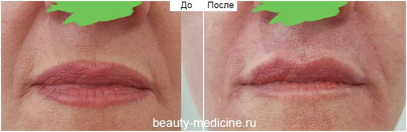 Коррекция носогубных складок филлерами, врач Соловых Н.А.