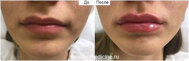 Коррекция губ филлерами (врач Алмазова А.А.)