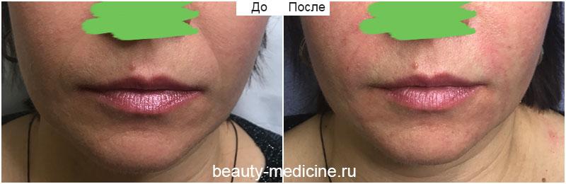 Коррекция носогубных складок филлерами (врач Алмазова А.А.)