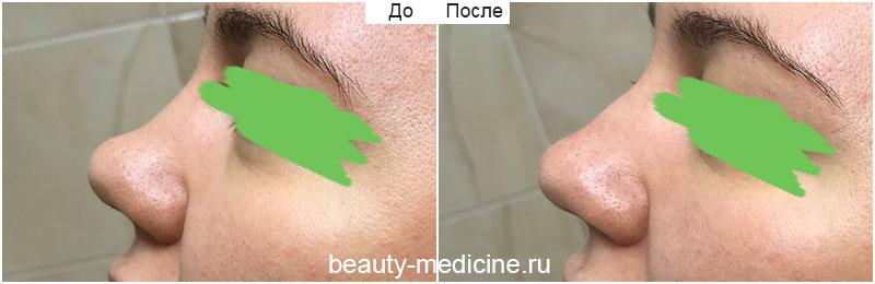 Коррекция спинки носа филлерами (врач Алмазова А.А.)