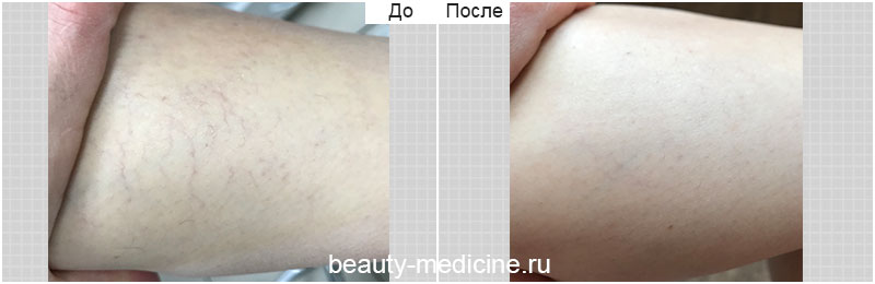 Удаление сосудов лазером на голени (врач Алмазова А.А.)