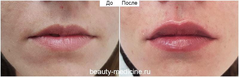 Контурная пластика губ. Препарат сурджидерм 24 хр. Объем 0.6 мл (врач Гусенаджиева М.З.)