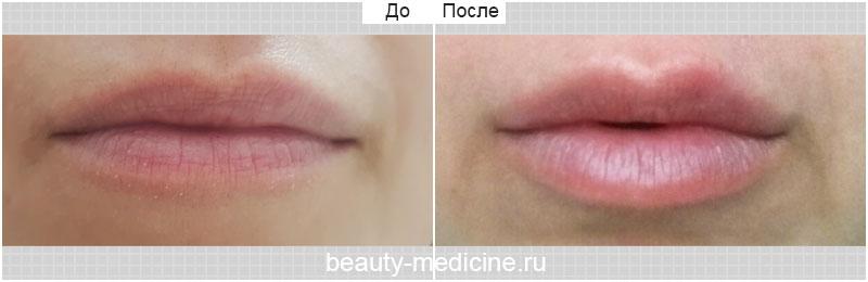 Увеличение губ (врач Гусенаджиева М.З.)