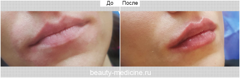 Увеличение губ (врач Гусейнаджиева М.З.)