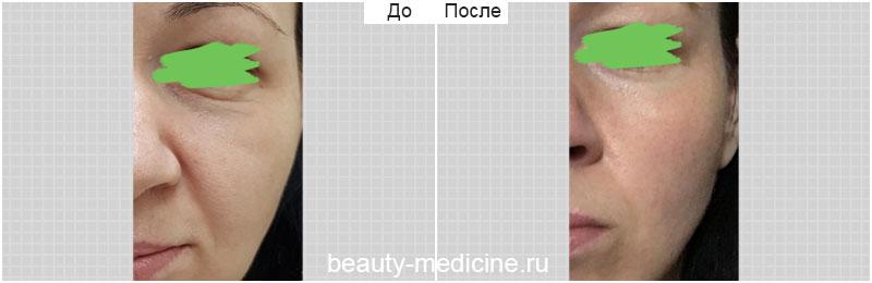 Контурная пластика средней трети лица (врач Гусенаджиева М.З.)