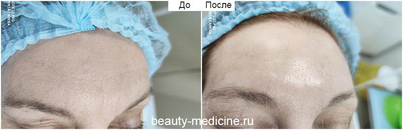 Очищающий пилинг Renophase (врач Соловых Н. А.)