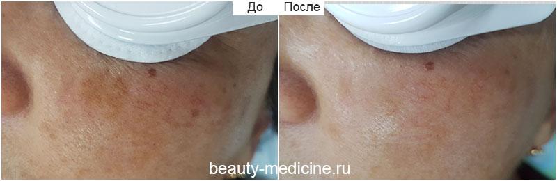 Фотоомоложение пигментации лица (врач Соловых Н.А.)