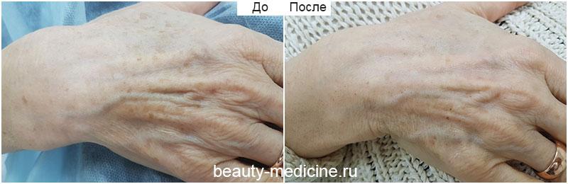 Фотоомоложение пигментации кистей (врач Соловых Н.А.)