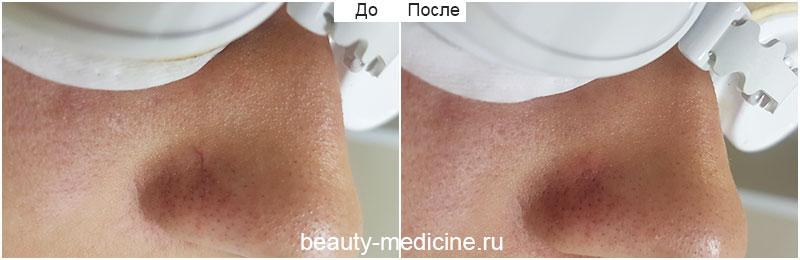 Удаление сосудов на крыльях носа (врач Соловых Н. А.)