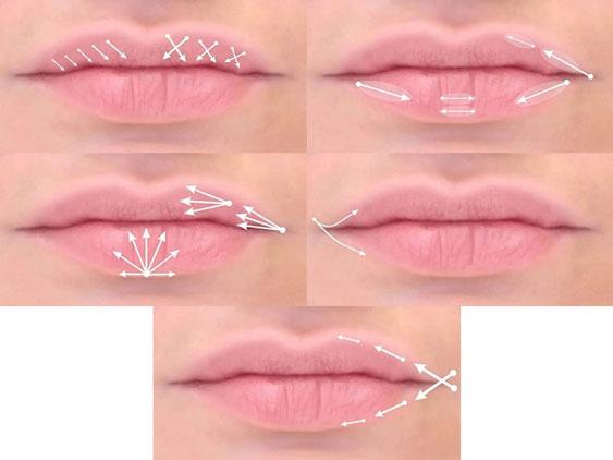Техники увеличения губ гиалуроновой кислотой