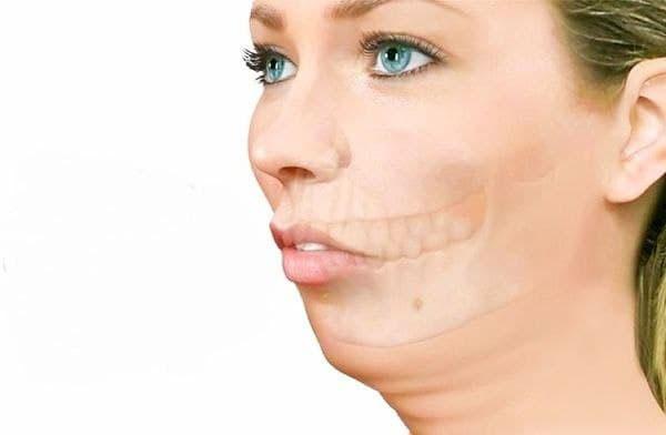Изменения овала лица при гопоплазии нижней челюсти